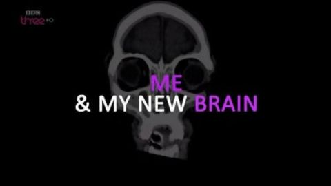 Me & My New Brain