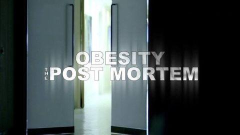 Obesity: The Post Mortem