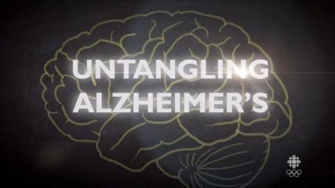 Untangling Alzheimers